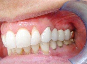 mini dental implants Lake City, FL